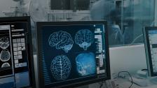 Intel® Optane™ SSDs help reduce MRI exam times